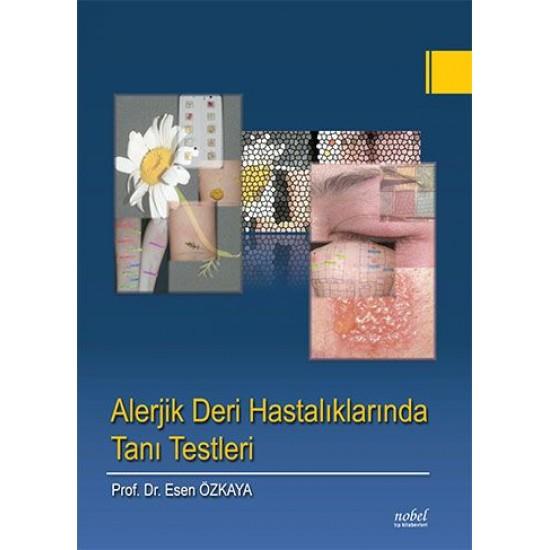 Alerjik Deri Hastalıklarında Tanı Testleri