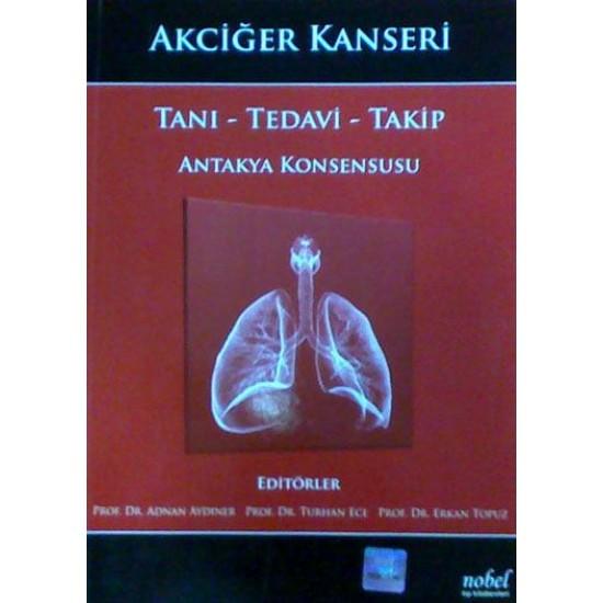 Akciğer Kanseri: Tanı - Tedavi - Takip - Antakya Konsensusu