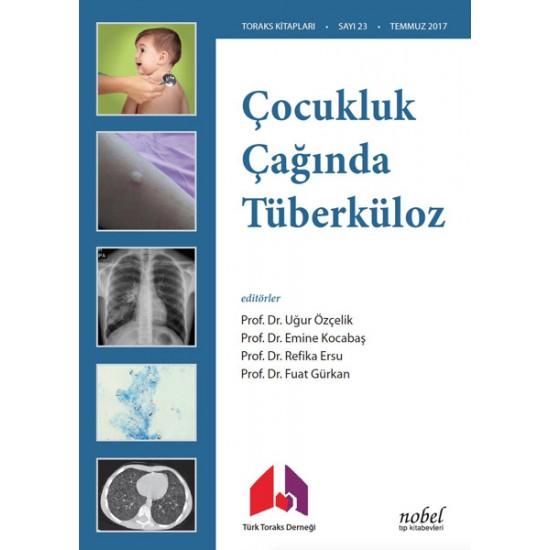Çocukluk Çağında Tüberküloz Tanı: Tedavi ve Korumada Güncel Yaklaşımlar ve Olgu Örnekleri